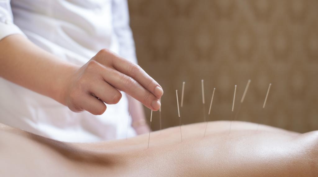 acupuncture in Santa Rosa California